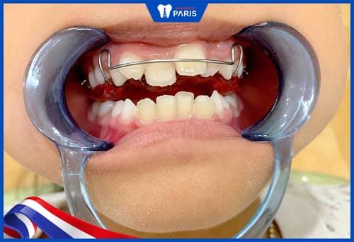 niềng răng điều trị khớp cắn chéo