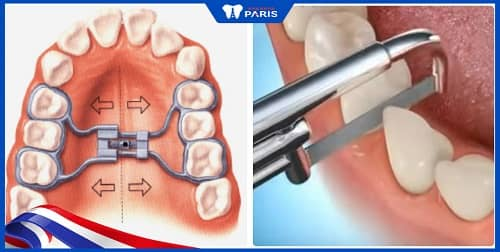 niềng răng mà không nhổ răng được không?