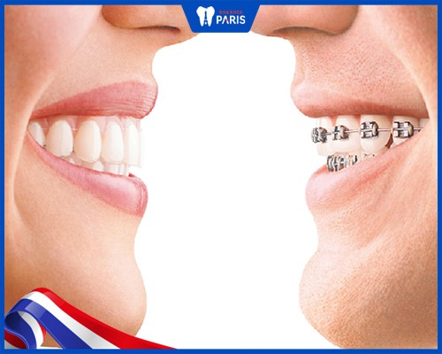 niềng răng trong suốt có hiệu quả không