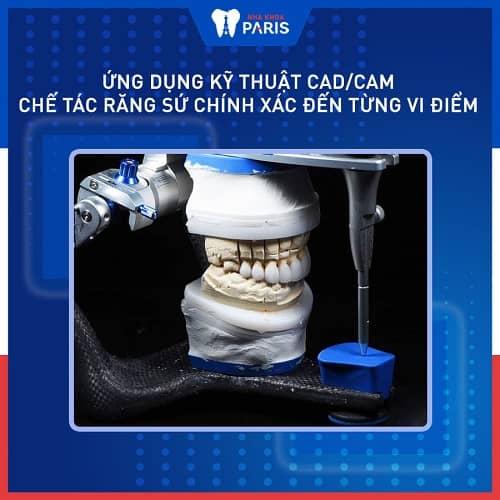 quy trình bọc răng sứ không mài
