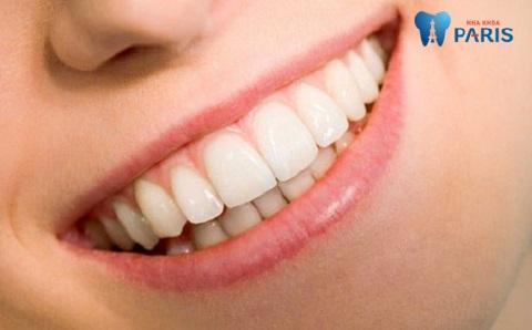 Hàm răng đẹp cần được đáp ứng nhiều tiêu chí
