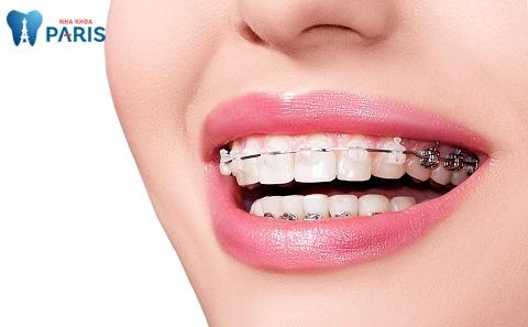 Niềng răng thẩm mỹ - Phương pháp giúp răng đều đẹp và thẳng tắp