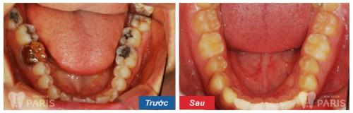 răng hàm có mọc lại không