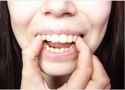 Nhiều người tin rằng đây là cách làm răng bớt vẩu hiệu quả
