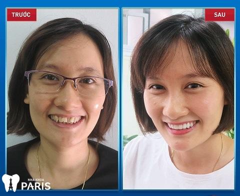 Một khách hàng U40 trẻ trung, tự tin hơn rất nhiều sau khi bọc răng sứ.