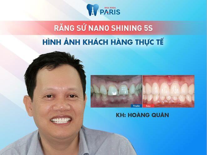 """""""Bọc răng sứ giúp tôi có được hàm răng trắng sáng, việc ăn nhai diễn ra hoàn toàn bình thường như răng thật, rất chắc chắn khi ăn uống"""" - Chia sẻ của khách hàng sau khi bọc răng sứ"""