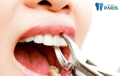 Thực hiện nhổ răng nếu can thiệp biện pháp trám răng hay bọc sứ không hiệu quả