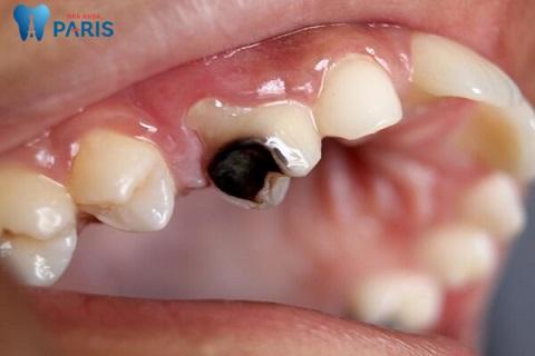 Trẻ bị sâu răng hàm phải làm gì là nỗi lo lắng của nhiều bậc phụ huynh