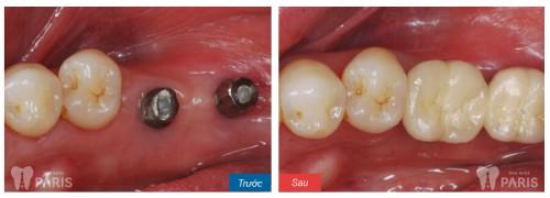 Trồng răng hàm bị vỡ