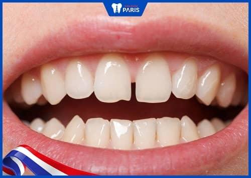 trường hợp nào niềng răng 1 hàm được