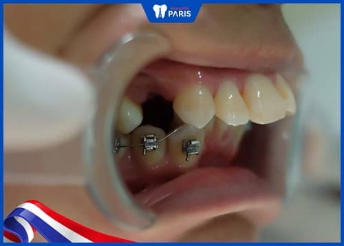 trường hợp nào cần nhổ răng khi niềng