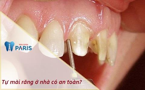 Tự mài răng ở nhà có an toàn không?