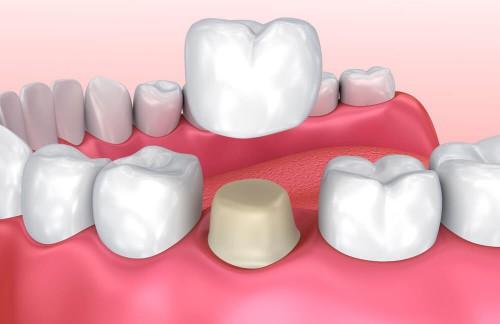 Bọc răng hàm bị vỡ