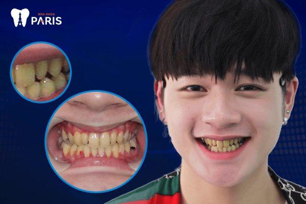 """Hình ảnh hàm răng xấu của Leo khiến nhiều fan hâm mộ """"té ngửa""""."""