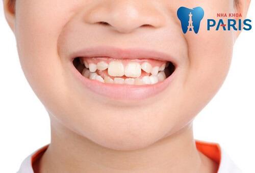 niềng răng silicon có hiệu quả không