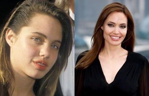 Angelina Jolie Pitt niềng răng