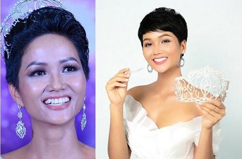 trước và sau khi H'Hen Niê niềng răng