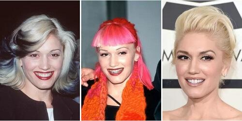 Gwen Stefani niềng răng