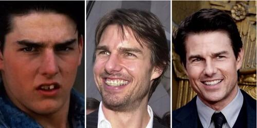 Tom Cruise niềng răng