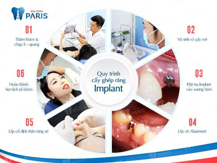 Quy trình trồng răng Implant 6 bước