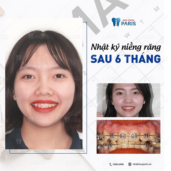 niềng răng trả góp 2