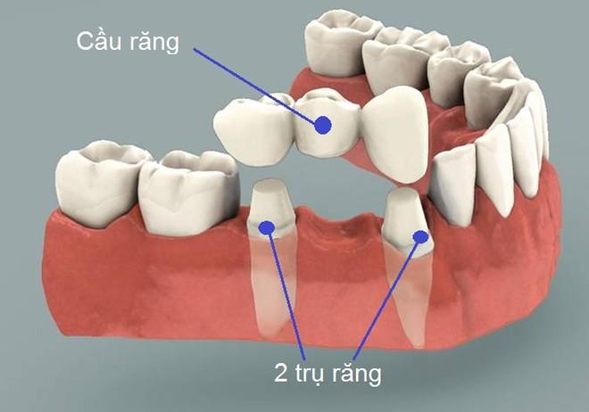 trồng răng giả cho người già