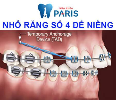 nhổ răng số 4