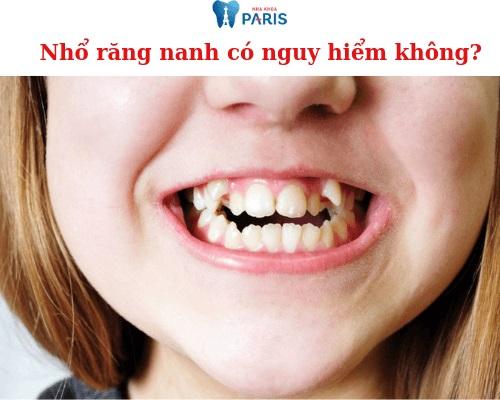 Nhổ răng nanh có nguy hiểm không