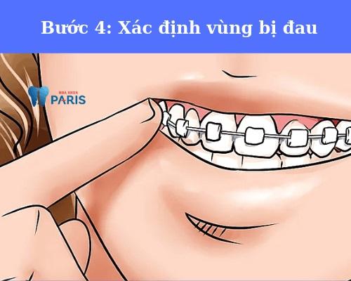 cách sử dụng sáp bôi niềng răng