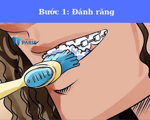 cách sử dụng sáp nha khoa