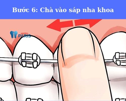 hướng dẫn bôi sáp niềng răng
