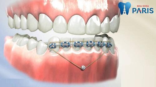 niềng răng khớp cắn sâu