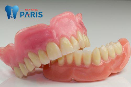 chi phí trồng răng nguyên hàm