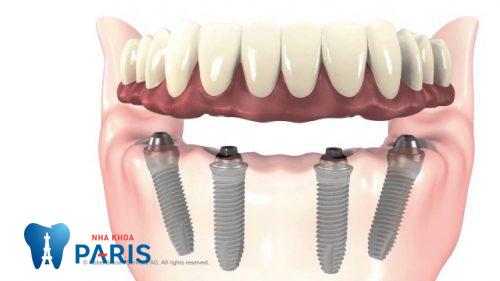tại sao nên chọn trồng răng implant nguyên hàm