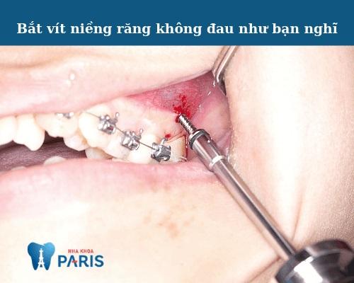 bắt vít niềng răng có đau không