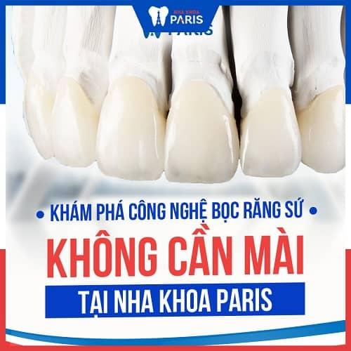 bọc răng tạo khớp cắn chuẩn