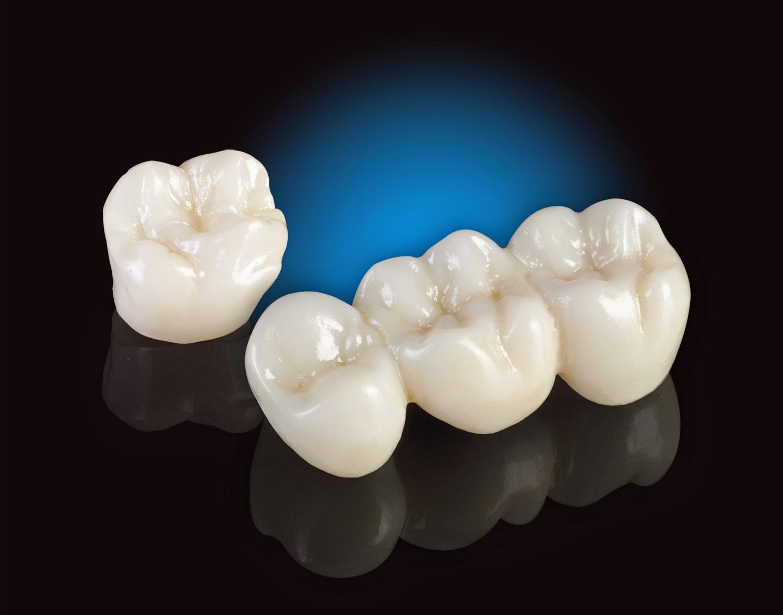 răng sứ vita giá bao nhiêu