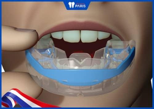 cách sử dụng niềng răng trainer