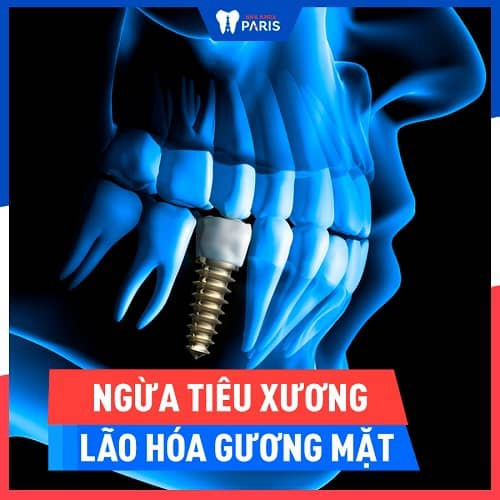trị tiêu xương chân răng