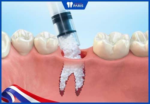 điều trị tiêu xương ổ răng