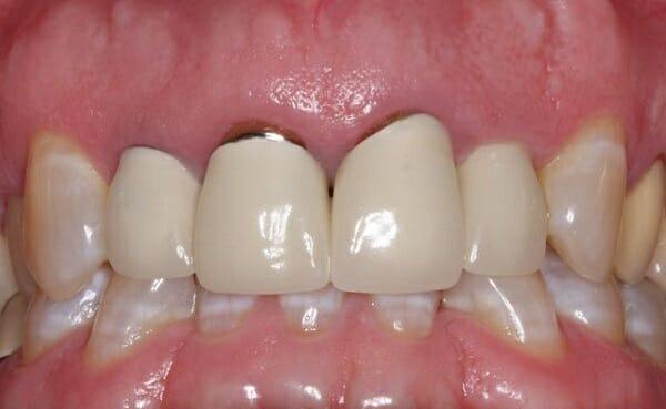 dấu hiệu răng sứ bị hở