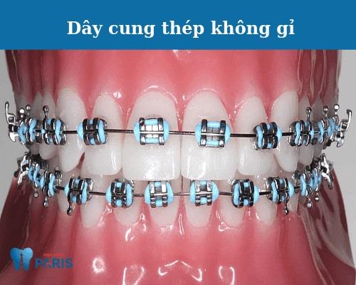 các loại dây cung niềng răng