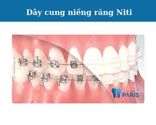 các loại dây cung niềng răng 1