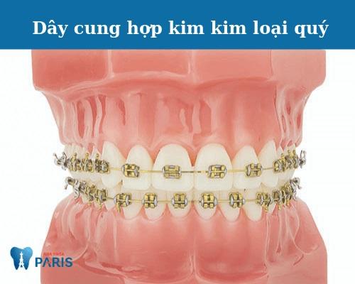 dây cung niềng răng có tác dụng gì