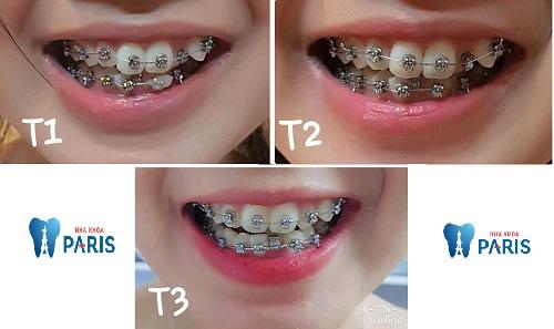 tác dụng dây cung niềng răng
