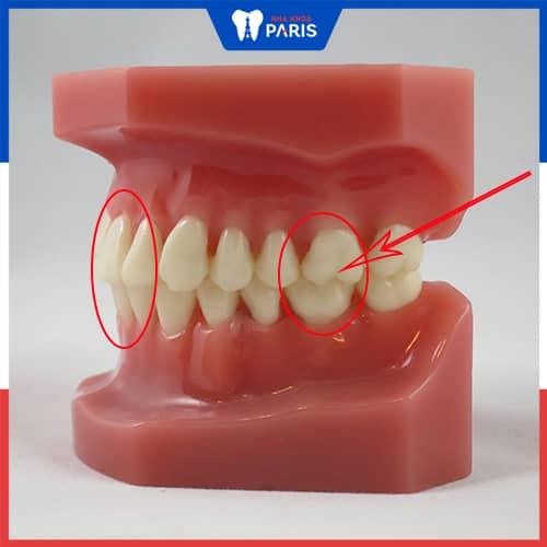 răng cắn chuẩn nhìn nghiêng