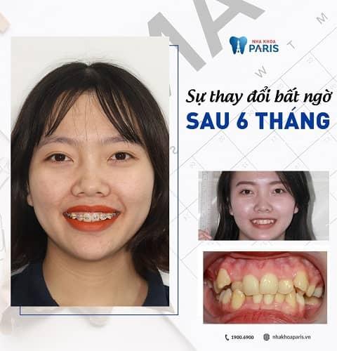 kinh nghiệm niềng răng mọc lệch