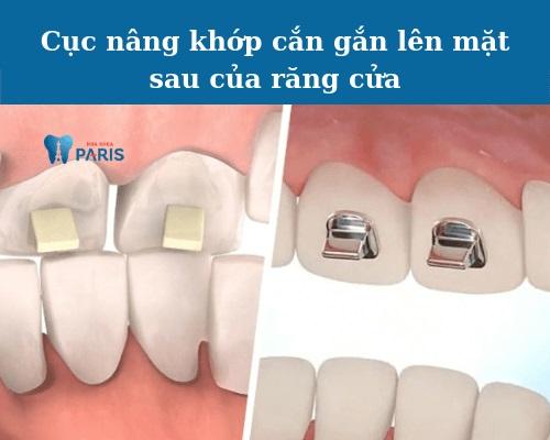 nâng khớp cắn trong niềng răng