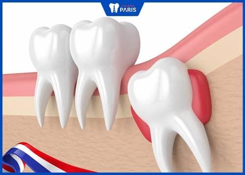 răng khôn nhổ bao lâu sẽ lành