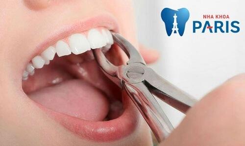 răng nanh có nhổ được không